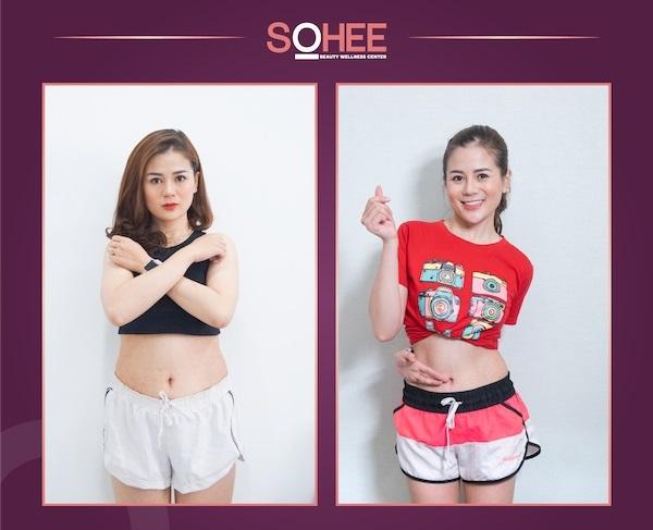 giảm béo hipro, công nghệ giảm béo hipro, công nghệ giảm béo hipro là gì, công nghệ giảm béo hipro có tốt không, liệu trình giảm béo công nghệ hipro, giá giảm béo công nghệ hipro, bảng giá giảm béo công nghệ hipro
