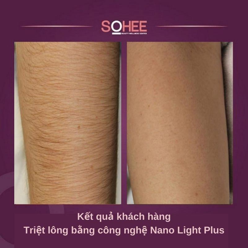 triệt lông toàn thân nano light plus, công nghệ triệt lông nano light plus, triệt lông công nghệ nano light plus, quy trình triệt lông toàn thân nano light plus, công nghệ triệt lông toàn thân nano light plus, liệu trình triệt lông công nghệ nano light plus